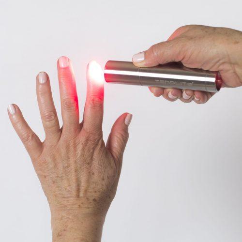 Tendlite being used on finger