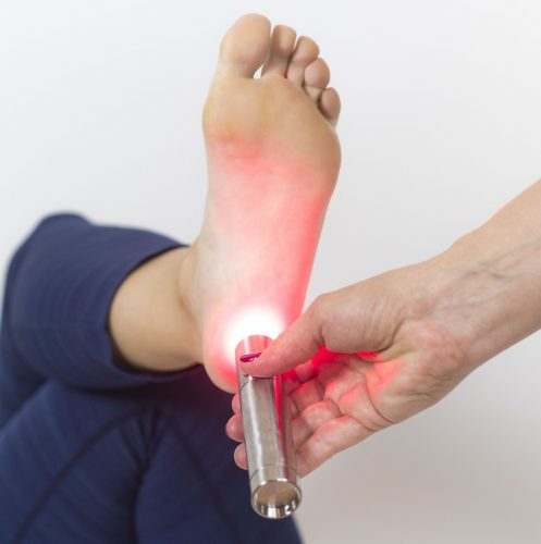 Tendlite being used on heel